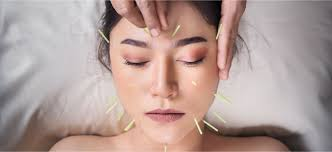 The  Unique  Aspects  of  Diagnosing  and  Treating  the  Face  in  Chinese  Medicine